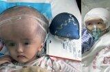 Китайской девочке первой в мире пересадили череп, напечатанный на 3D-принтере