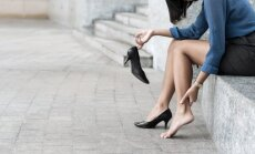 Piepampušas kājas vasarā. Speciālista padomi, kā atkal atgūt kāju skaistumu