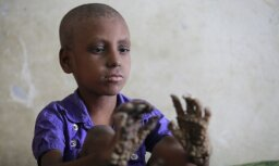 Foto: Bangladešā atrasts puisēns-koks