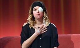 Foto: Sieviete, kuras seju bijušais draugs izkropļojis ar skābi
