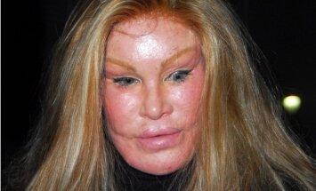 Kaķsievietes traģiskais stāsts: sakropļota seja, izšķērdība un vardarbība