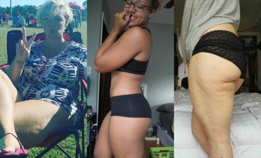 Atklāti foto: Sievietes nekautrīgi dižojas ar celulītu