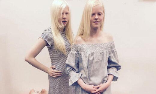Būt atšķirīgam ir skaisti: slavu gūst divas albīnas pusaudzes