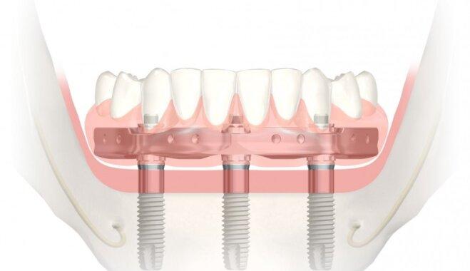 Apakšžokļa pastāvīgo zobu atjaunošana uz trijiem implantiem vienas dienas laikā