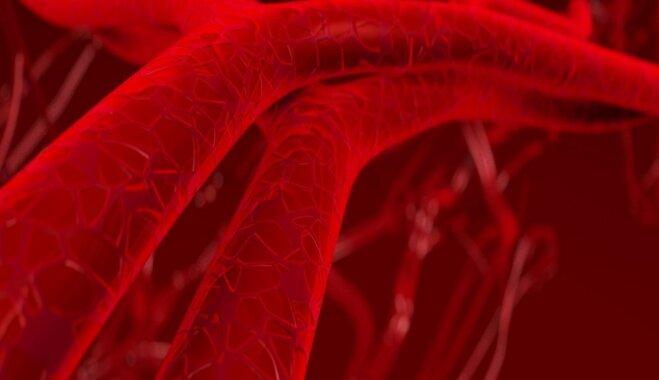 Latvijā veikta unikāla operācija pacientam ar asinsvadu sieniņu atslāņošanos