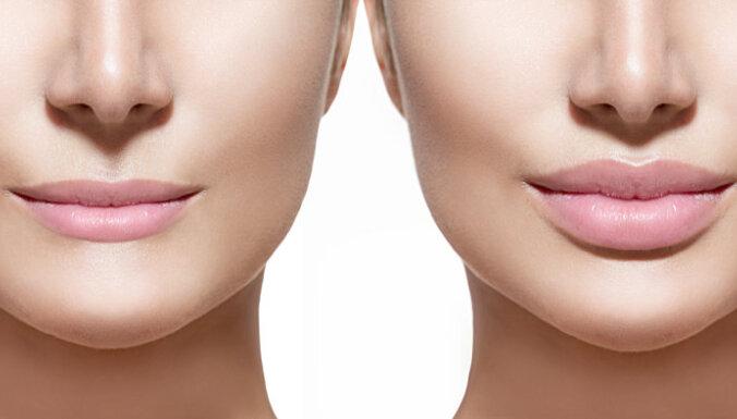 """Владелец клиники объяснил, почему в Латвии много женщин с эффектом """"опухших губ"""""""