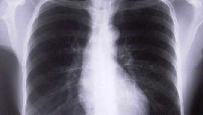 Covid-19 slimniekam nozīmēts izmeklējums – uz to jādodas, bet ir vairāki nosacījumi