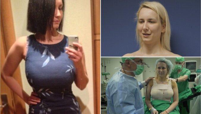 Operāciju šova Danēlai krūtis nu ir par sešiem izmēriem mazākas