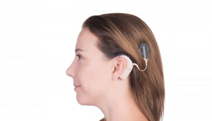 Kohleārie implanti – nedzirdīgo iespēja dzirdēt
