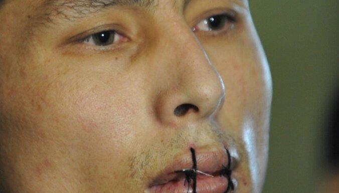 Kirgizstānas cietumos beigusies protesta akcija, kurā ieslodzītie sašuva sev lūpas