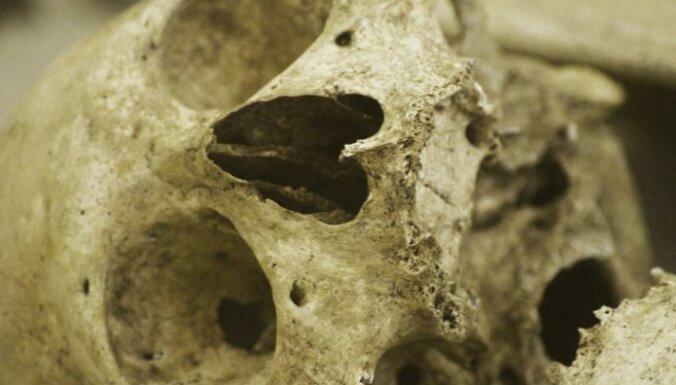 Zinātnieki atraduši aizvēsturisku invalīdu