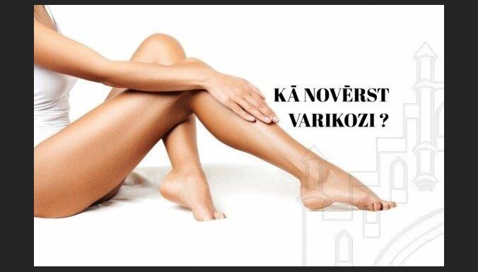 Ноги в сеточку: как одолеть варикоз