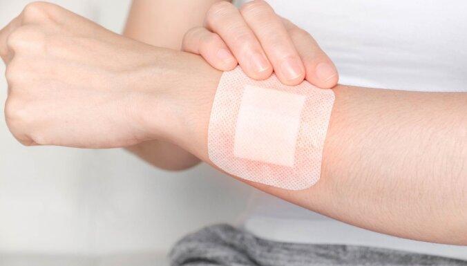 Radīti viedie pārsēji, kas var identificēt un ārstēt inficētas brūces