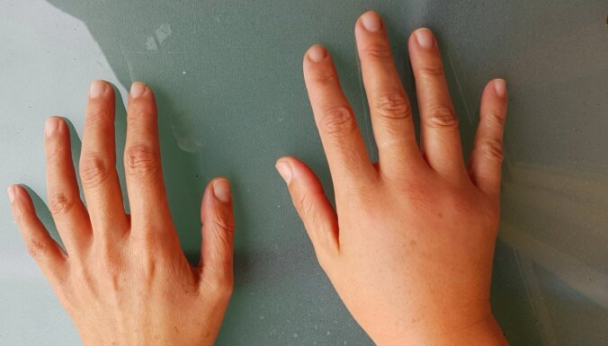 Rokas kā bluķi un pirksti kā sardelītes. Iemesli, kāpēc rodas tūkums