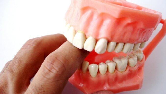 zobi, erekcija