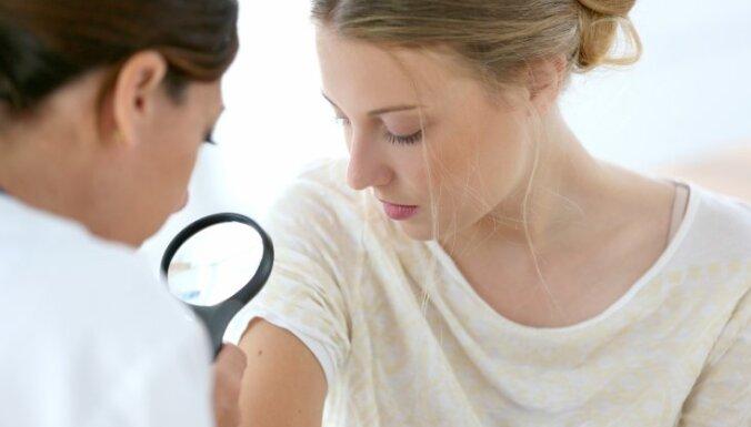Raidījums: Valsts beidzot apmaksā melanomas zāles