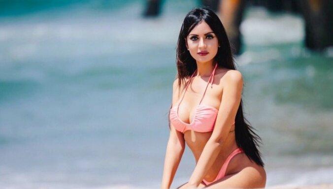 Brazīliešu 'dzīvā lellīte' pēc ribu izņemšanas operācijas pozē bikini