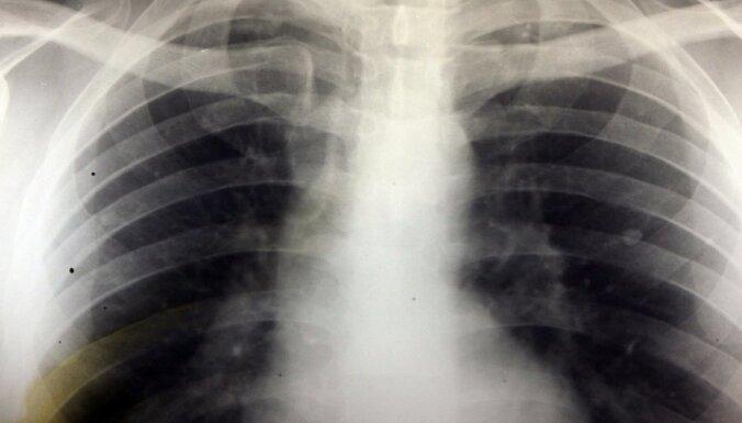 """Латвия — в европейской """"тройке лидеров"""" по заболеванию туберкулезом"""