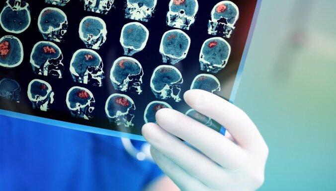 RSU studenti gūst starptautisku atzinību par implantu, kas palīdz izsargāties no insulta
