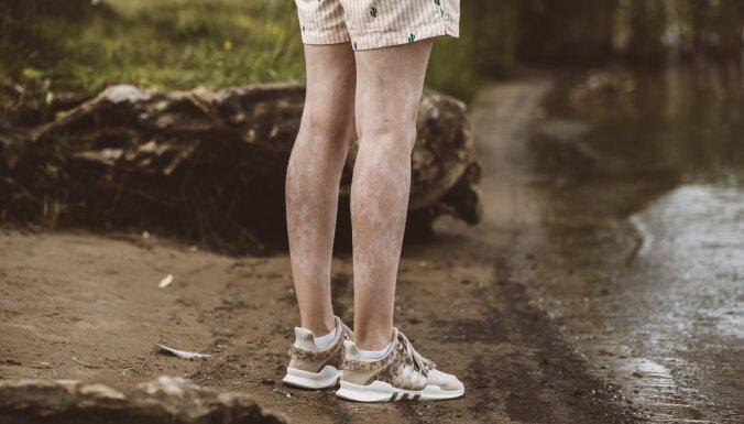 """""""В детстве меня дразнили далматинцем и жирафом"""". Латвийский фотограф рассказала 7 историй о людях с витилиго"""