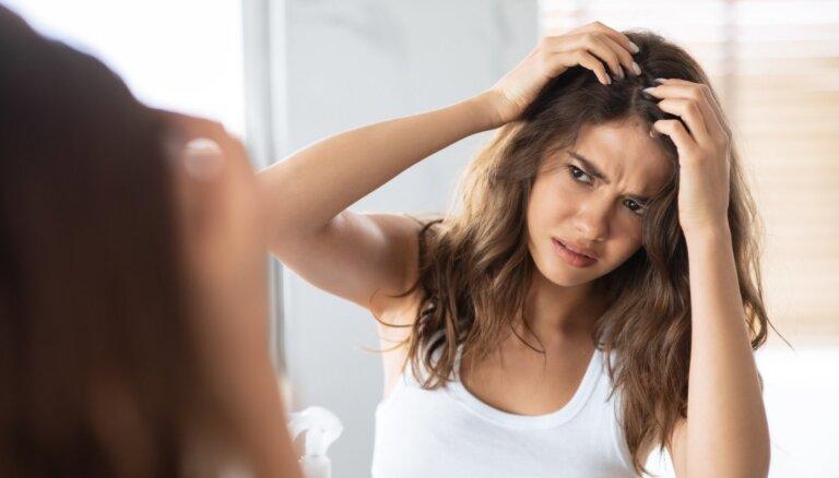 Biežāk sastopamās galvas ādas slimības – cēloņi un ārstēšana