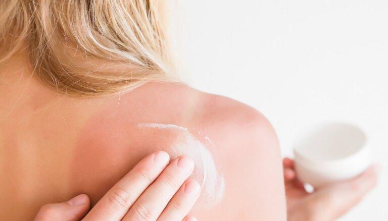 Saules apdegumi – kā mazināt sāpes un kopt apsārtušo ādu