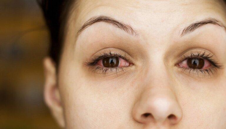 Синдром красных глаз: о чем он говорит и что с этим делать?