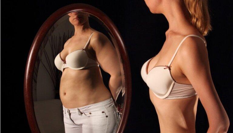 Pat atrodoties reanimācijā, noliedzu savu anoreksiju. Svetas pieredze