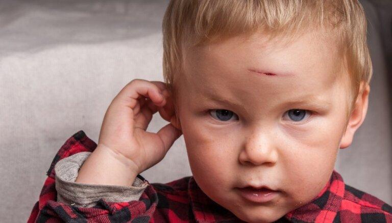 Эксперты бьют тревогу: в большинстве случаев тяжелых детских травм виноваты родители