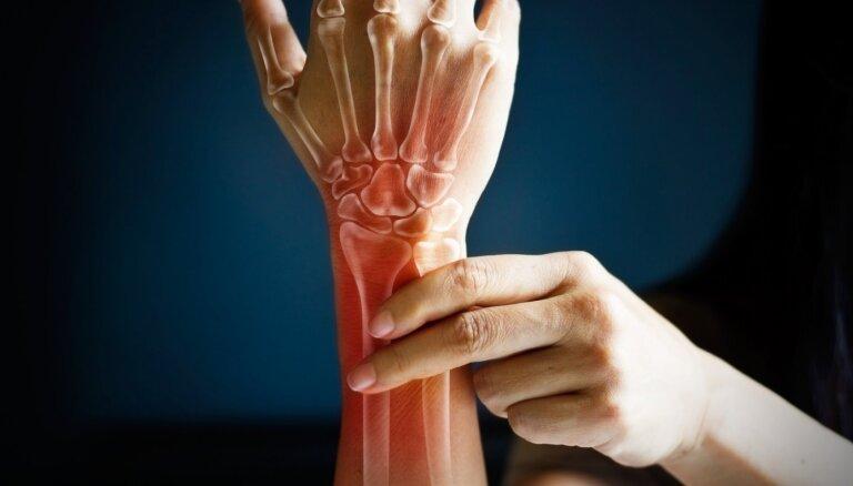 Neļauj vecumam iezagties kaulos: ieteikumi to veselības stiprināšanai